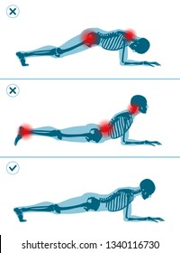 Wrong and correct plank position. Right and wrong execution technique of sport exercise. Common mistakes in sport workout. Man standing on elbows.