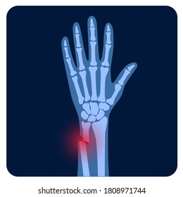 X ray of arm fracture with red pain point and inflammination. Broken hand with open type of fracture. Human skeleton anatomy concept. Medical banner for clinic or hospital. Flat vector illustration