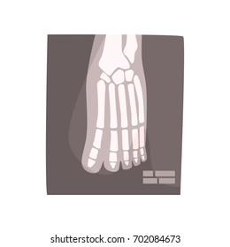 X ray image of human foot cartoon vector Illustration