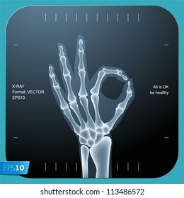 X-ray of both human hand (OK!), vector Eps 10 illustration.