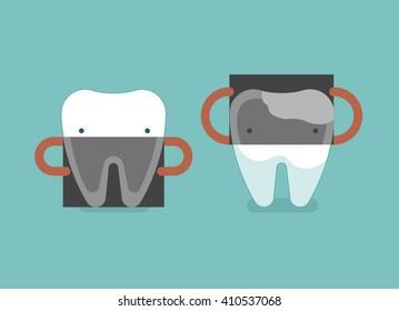 X-ray of dental