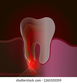 X-ray effect. The transition from a real tooth to a linear x-ray effect with a point of pain and inflammation. Medical illustration of tooth root inflammation, tooth root cyst, pulpitis.