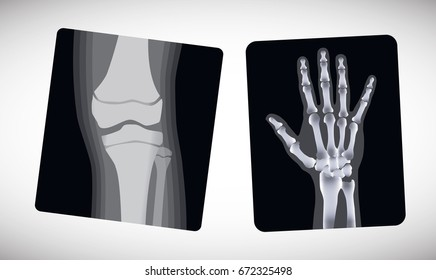 X-ray of the hand and foot. Vector illustration.