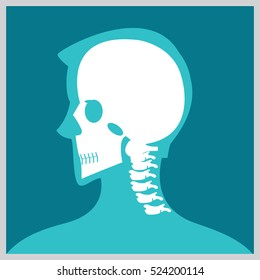 Xray of  head and neck, the joints and bones,human joints, skeletal spinal bone structure of Human Spine, medical health care flat vector illustration.