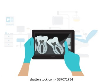 X-ray of human teeth on a tablet in the hands of the dentist background dental office