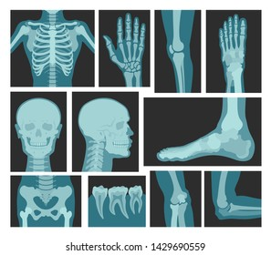 X-rays of human body, medical equipment. Photographic or digital image for doctors to examine bones or organs inside. Vector x-rays of bones illustration.