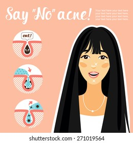 Young Korean girl with perfect skin. Poster about the shortcomings of the skin and their destruction. Say no to acne! icons skin incision
