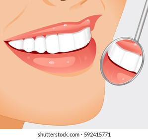 Young smiling woman having her teeth examined with dental mirror. Vector illustration.