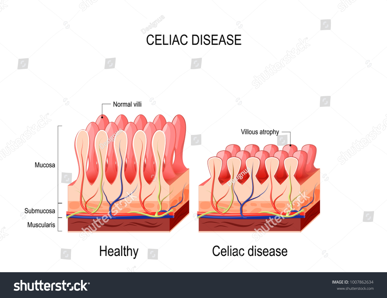 Coeliac Disease Celiac Disease Normal Villi Stockillustration