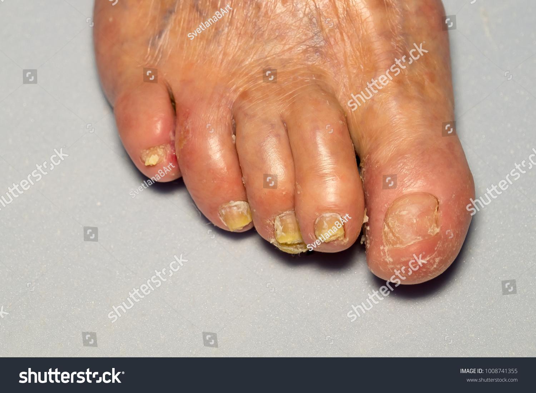 Leg Disease Skin Foot Nails Strong Stock Photo (Royalty Free ...