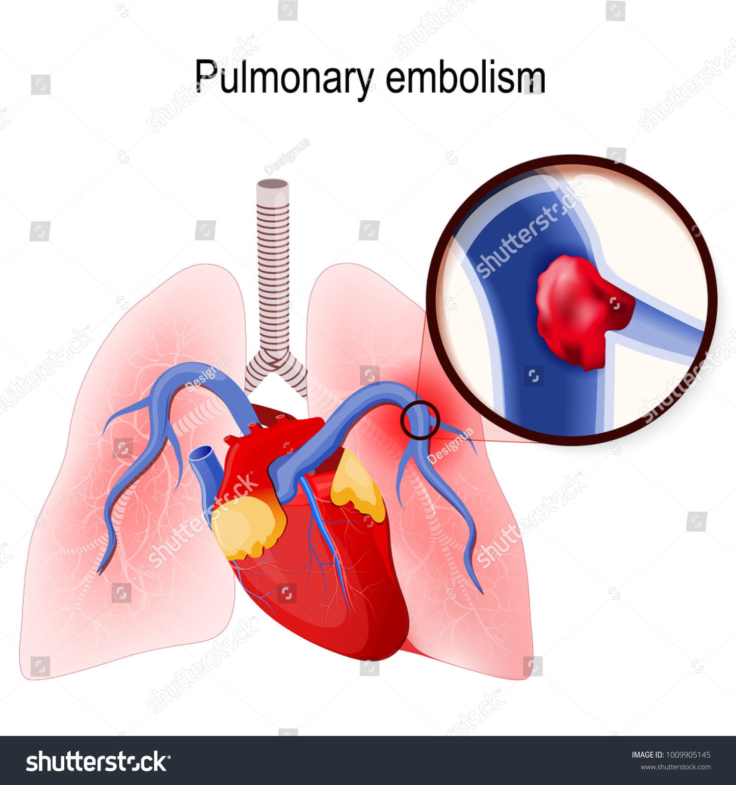 Pulmonary Embolism Blockage Main Artery Lung Stock Vektorgrafik