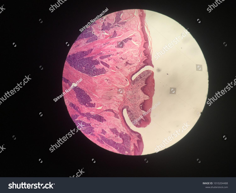 Tongue Cellcircumvallate Papillae Stock Photo Edit Now 1010204488