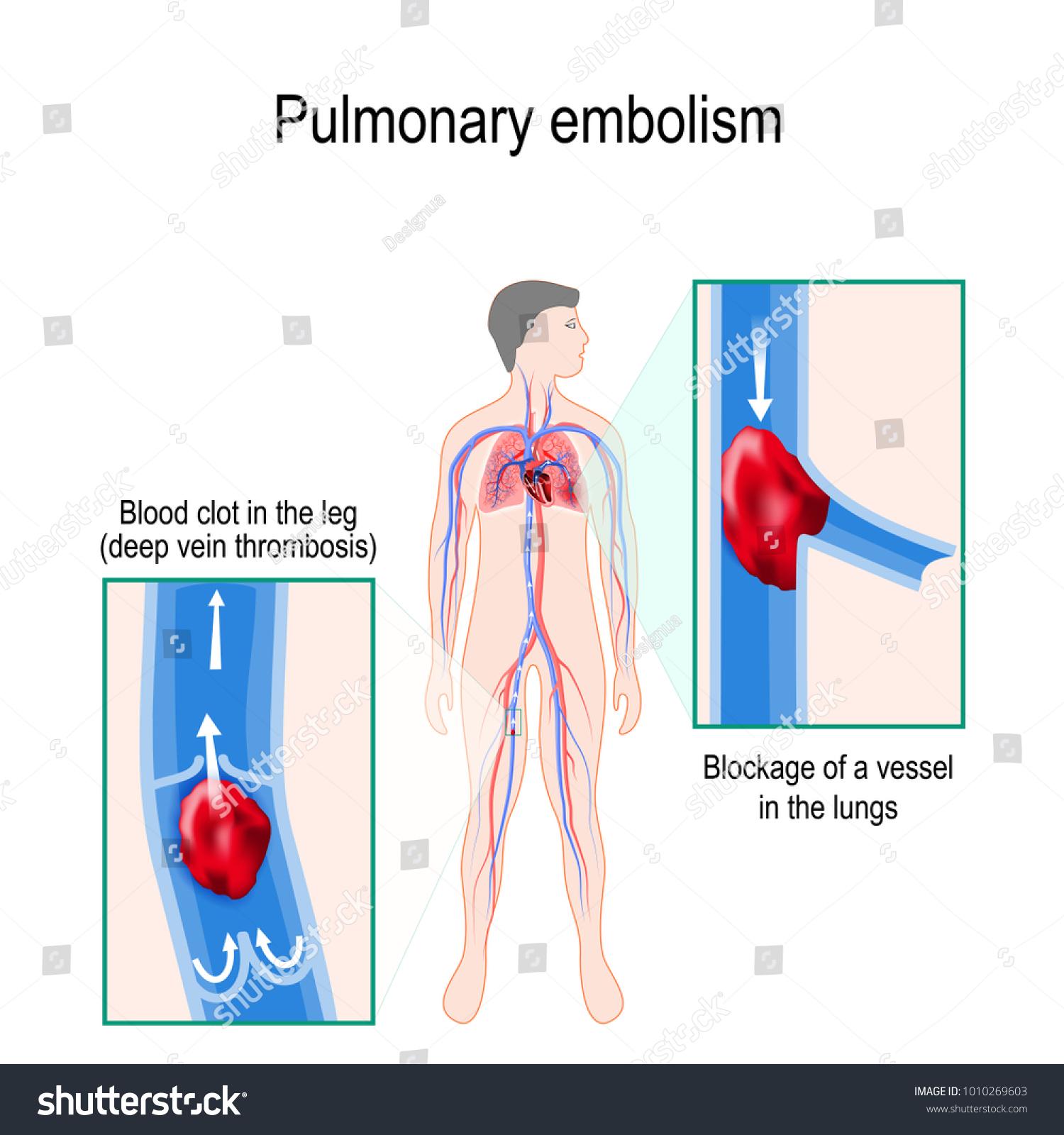 Pulmonary Embolism Human Silhouette Highlighted Circulatory Stock ...