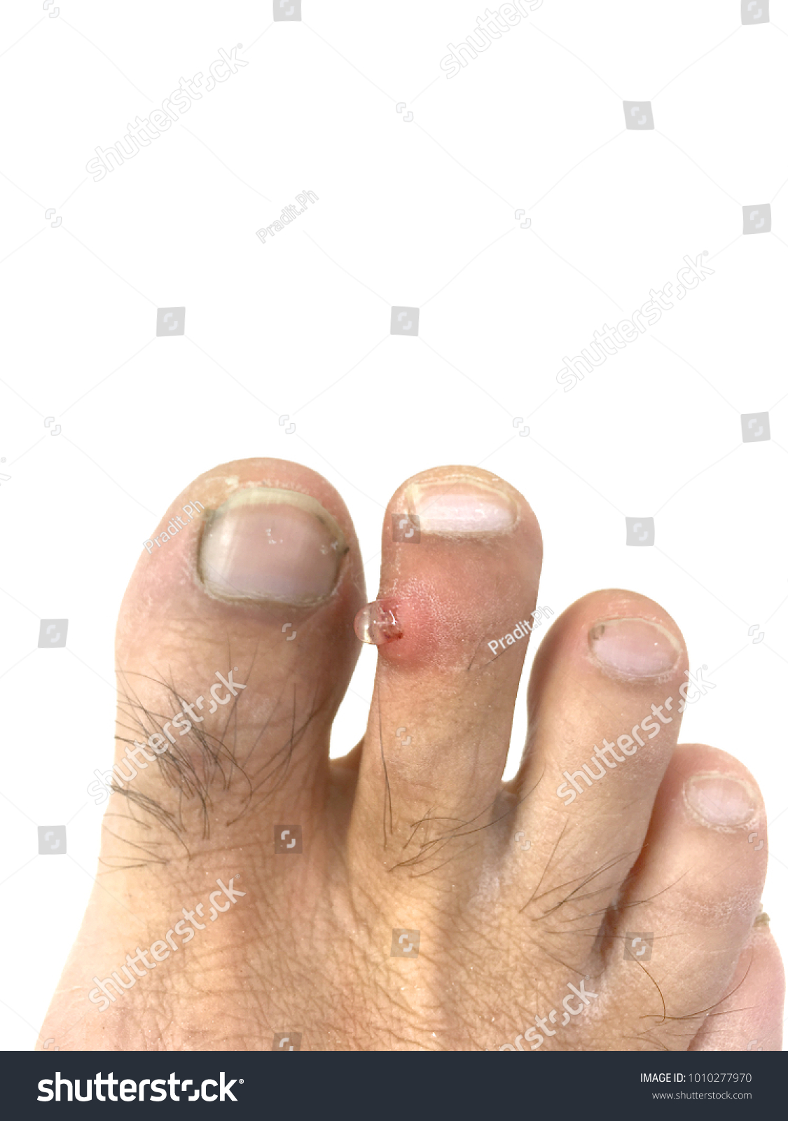 Bacteria Inflammation Infection Pus On Toe Stock Photo (Download Now ...