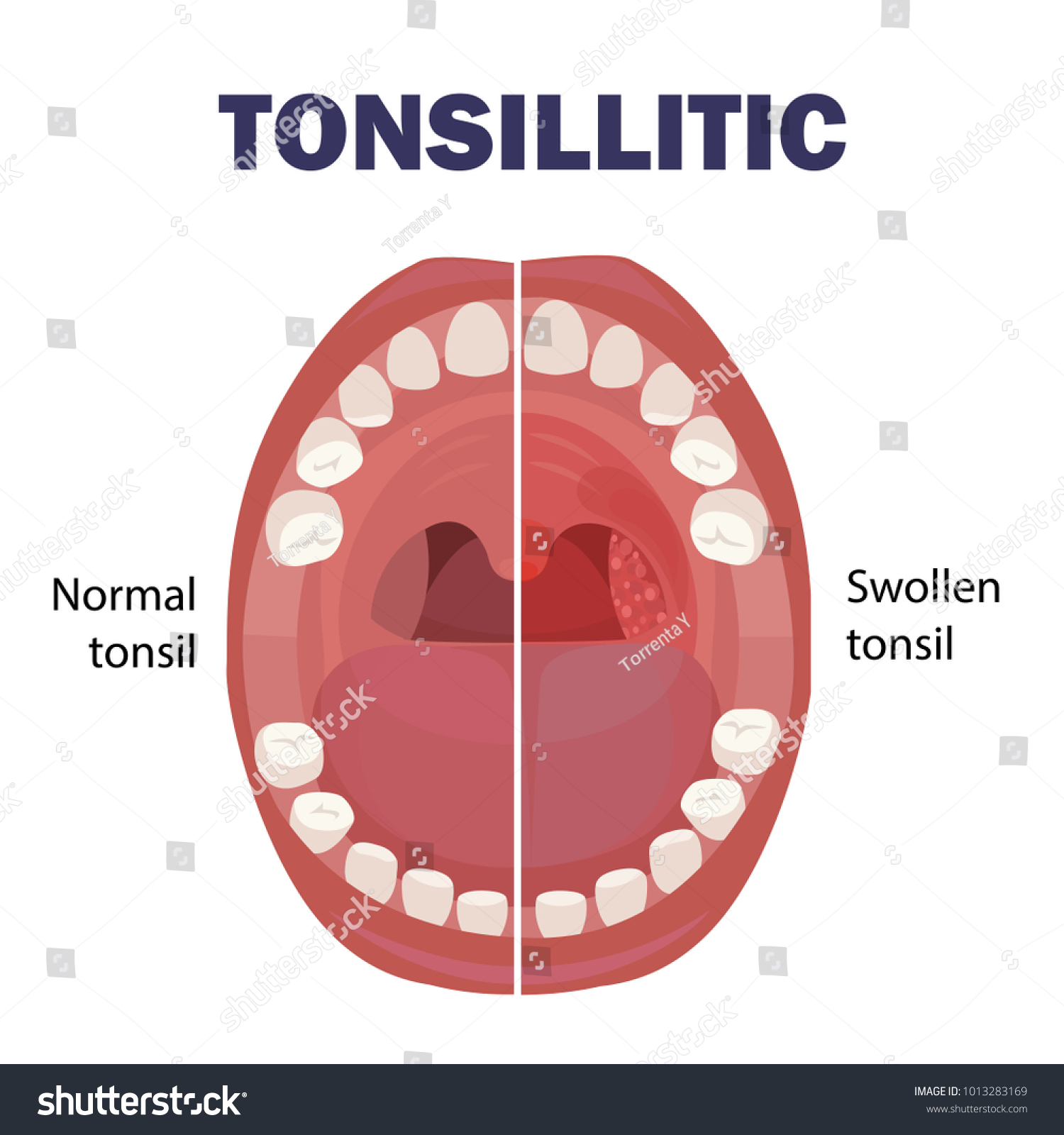 Anatomy Human Mouth Tonsil Stone Mouth Stock Photo (Photo, Vector ...