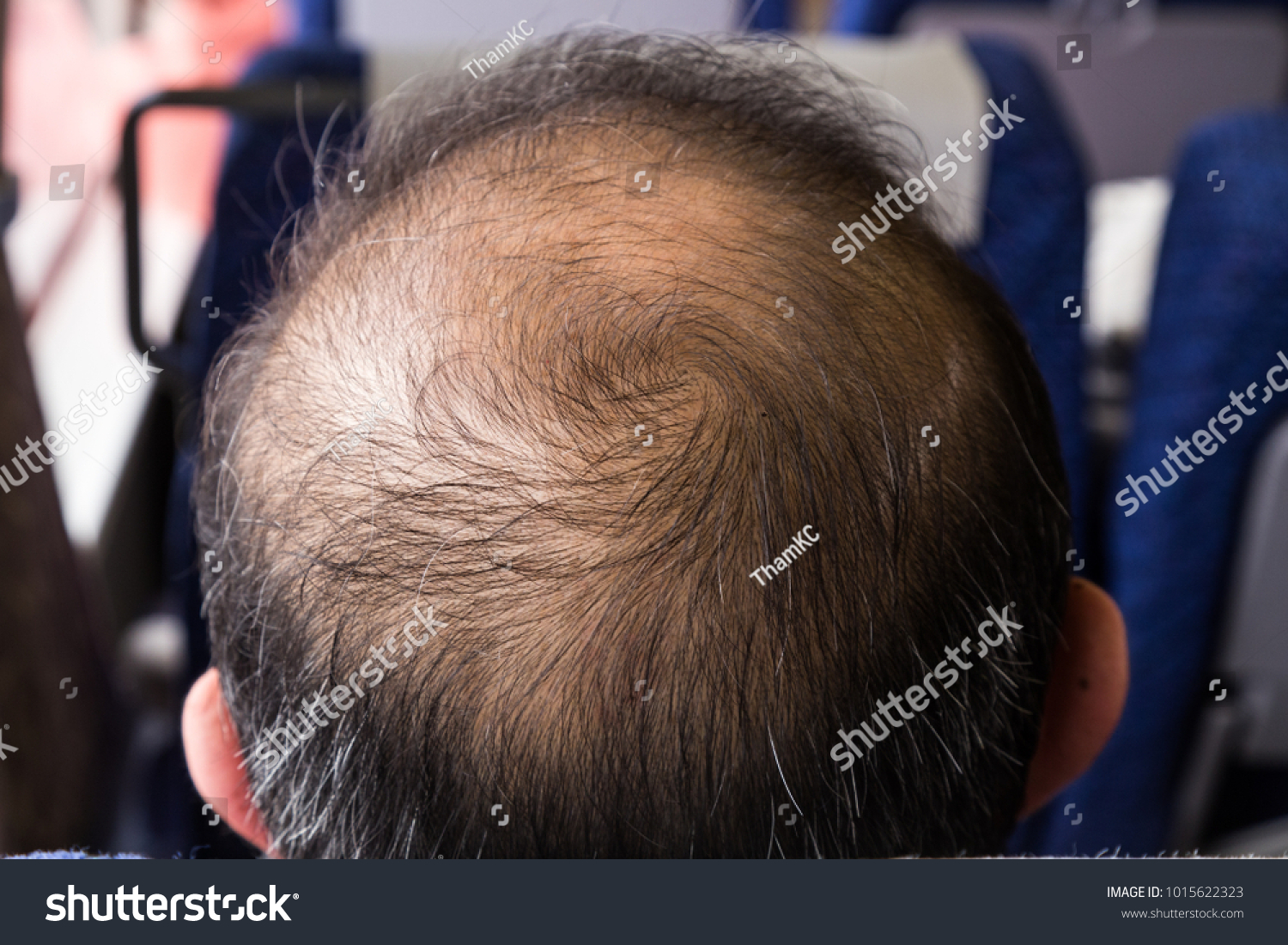Closeup Balding Thinning Hair Man Crown Stock Photo Royalty Free