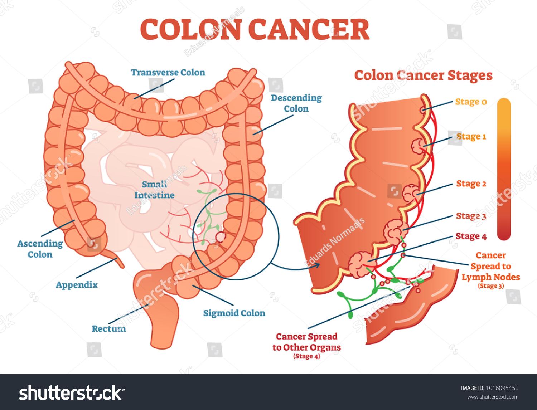 Colon Cancer Medical Vector Illustration Scheme Vector de ...