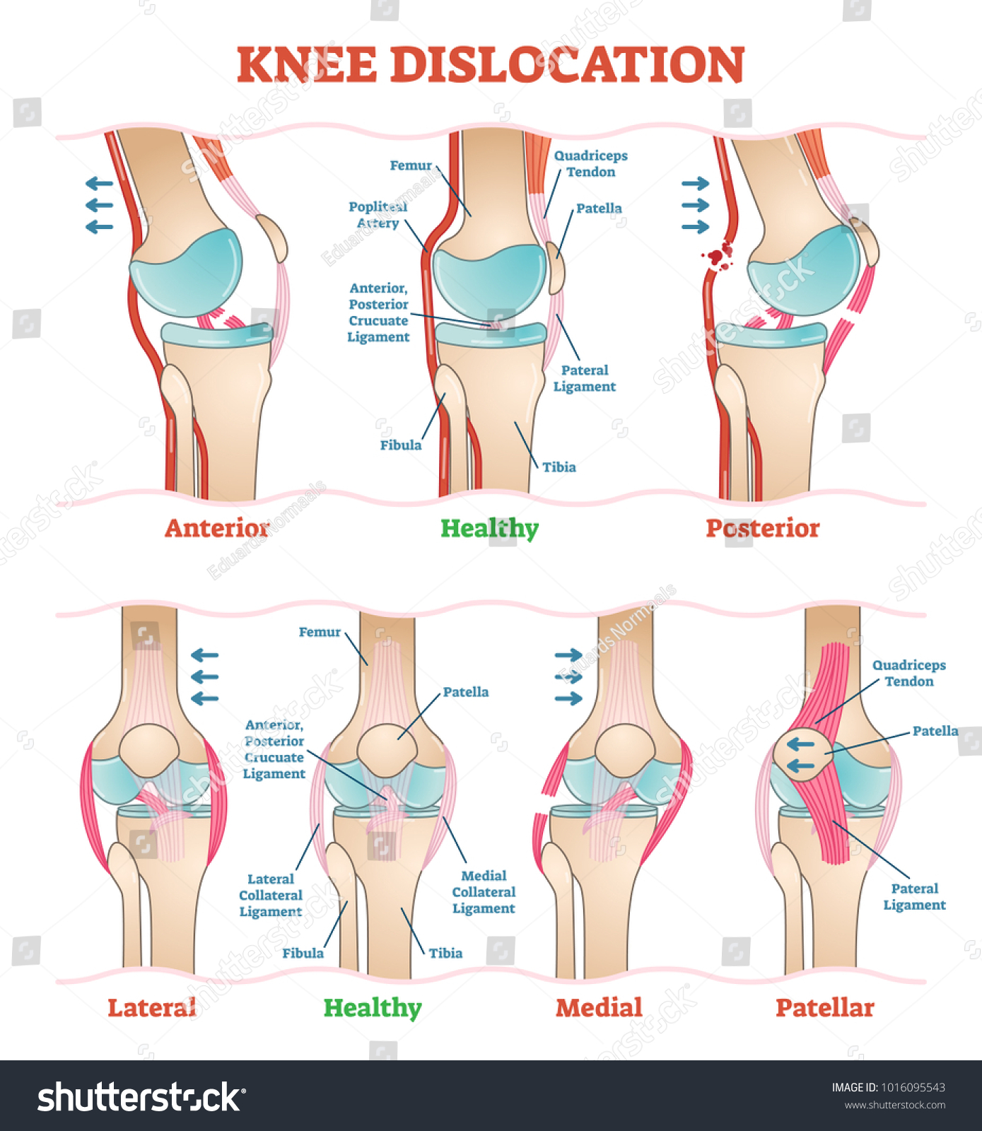 Knee Dislocations Medical Vector Illustration Diagrams Stock ...
