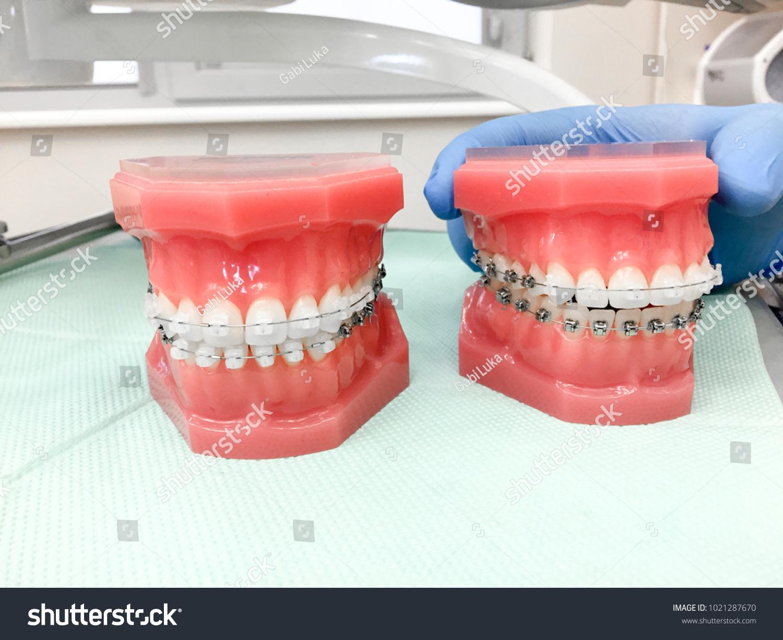 Strange Models Human Jaw Different Wire Braces Stock Photo Edit Now Wiring Database Ilarigelartorg