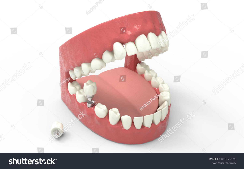Teeth Dentures Isolated On White Open Stock Illustration 1023825124