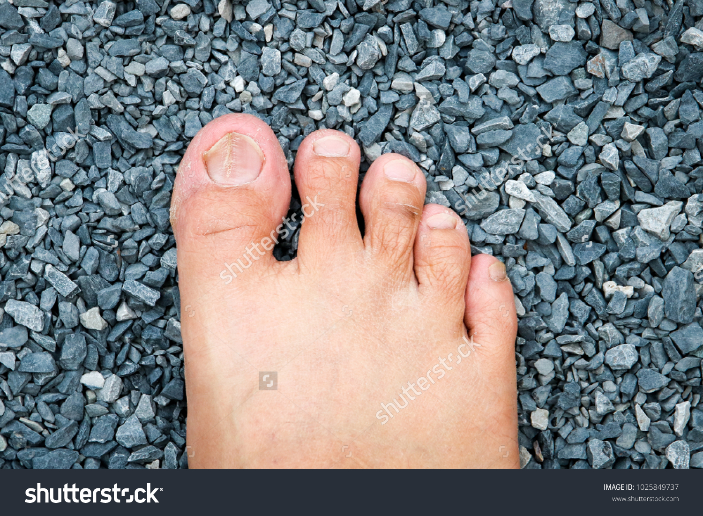 Vertical Ridges On Finger Nails Dryness Stock Photo (100% Legal ...