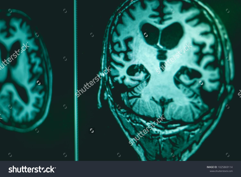 Alzheimers Disease On Film MRI Hippocampus Stock Photo (Edit Now ...