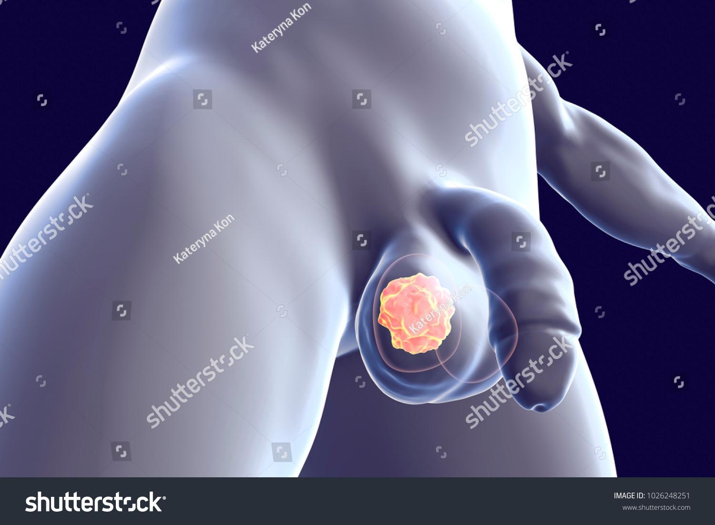 Testicular Cancer Medical Concept Cancer Testis Stock Illustration