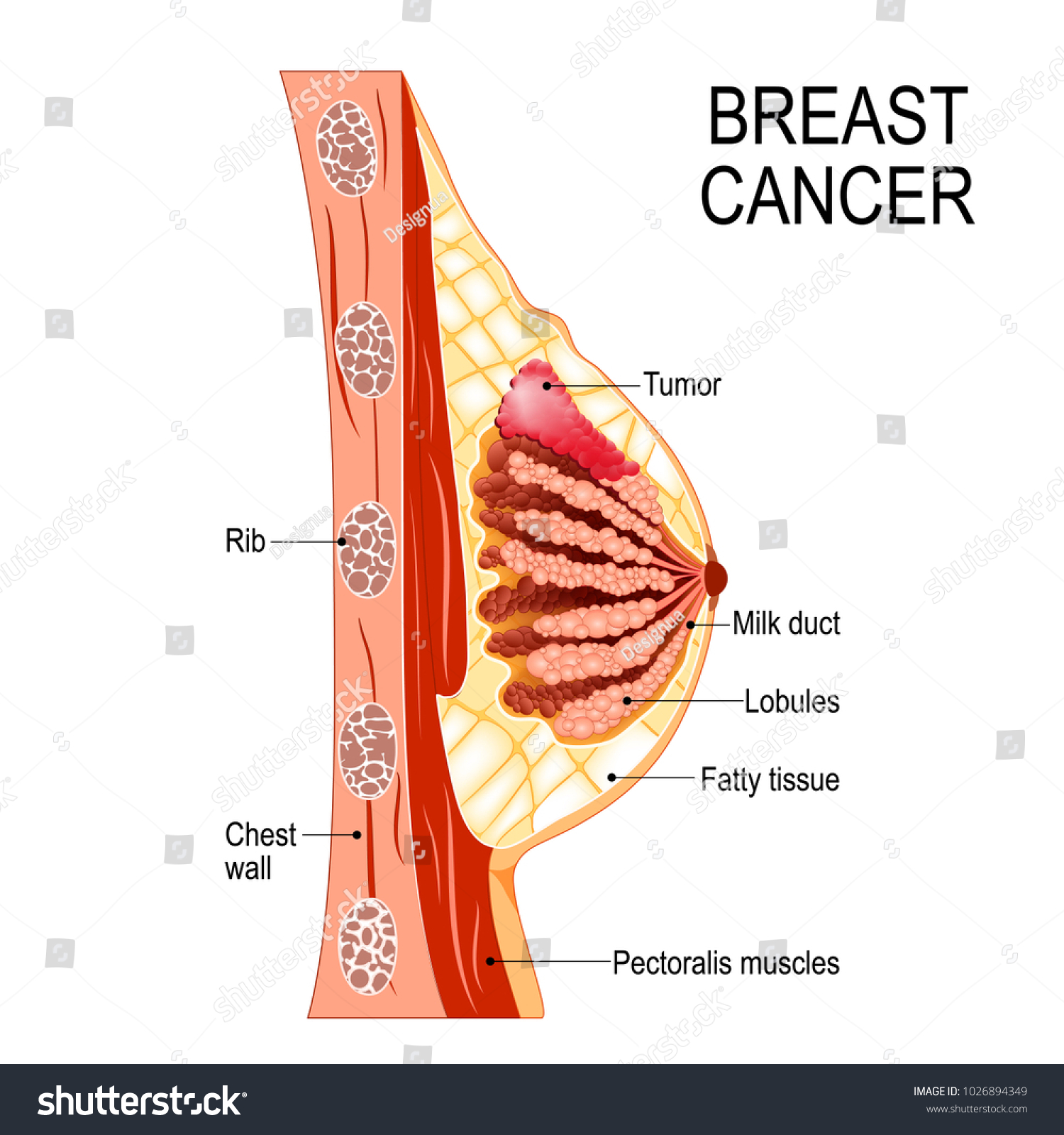 Breast Cancer Crosssection Mammary Gland Tumor Stock Illustration ...