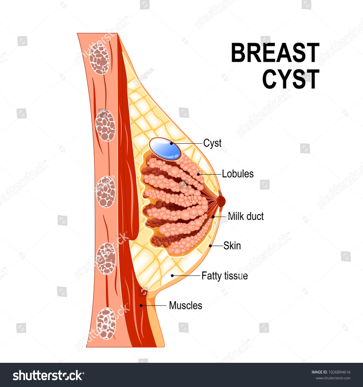 Breast Cyst Crosssection Mammary Gland Fluidfilled Stock ...