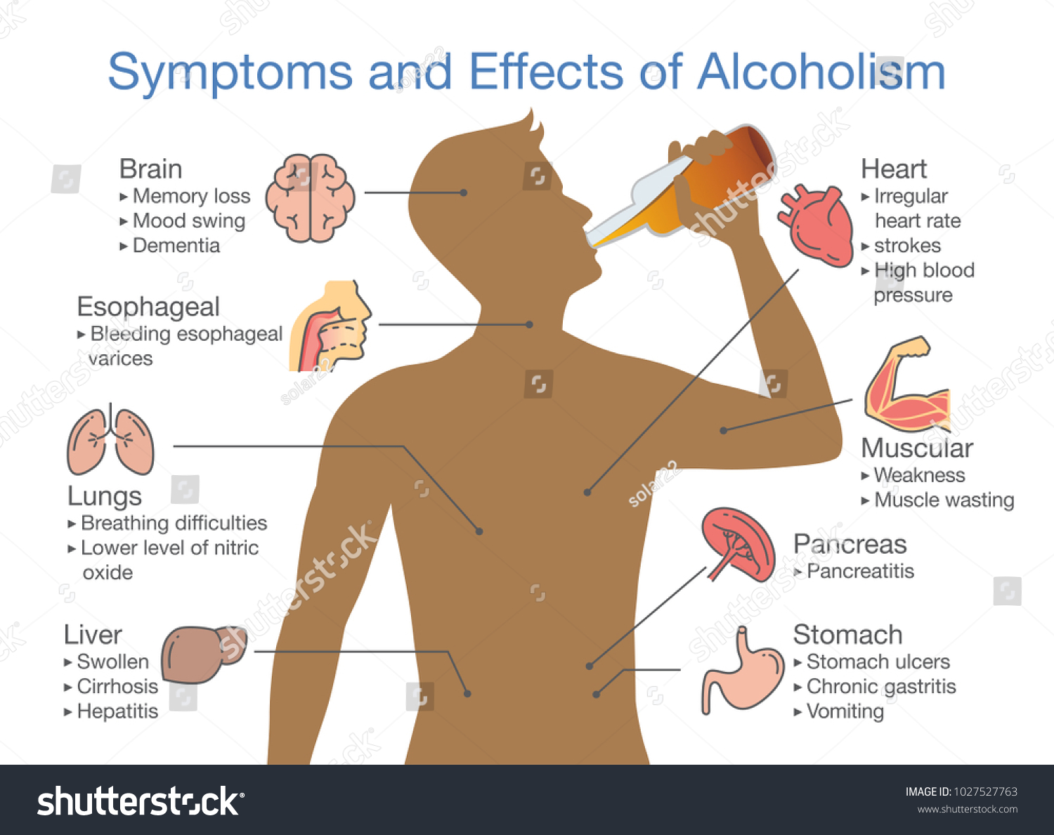 Symptoms and effects of alcoholism patient. Illustration about health problem of people with alcohol addiction.