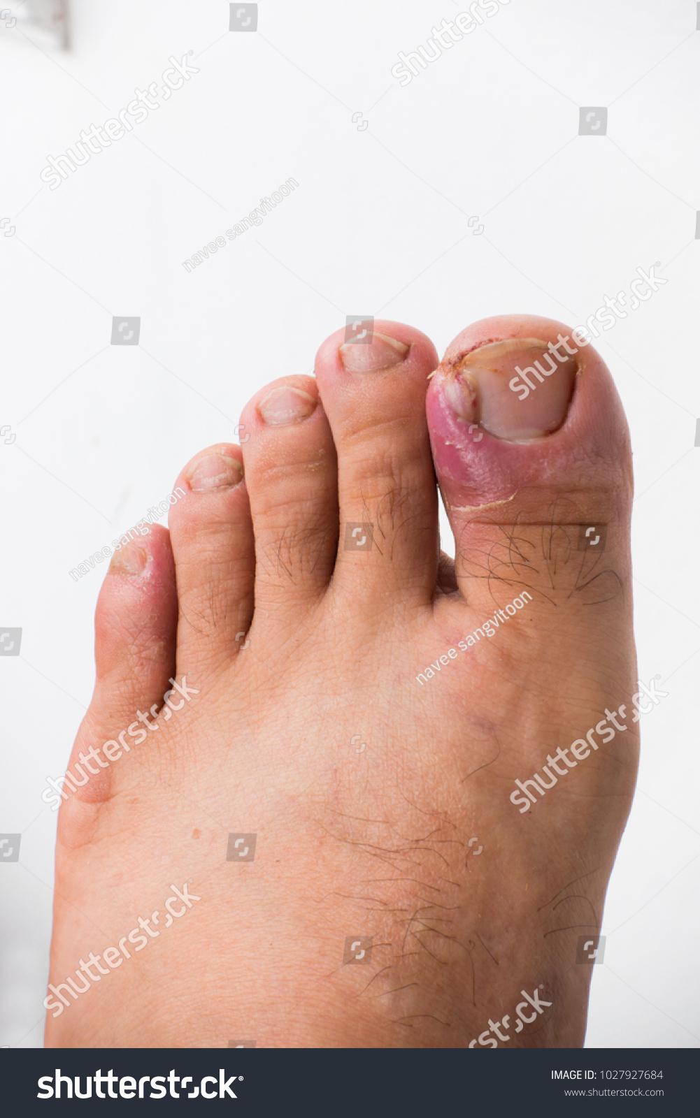 Close Ingrown Toenail Inflamed Fingernails Stock Photo (Royalty Free ...