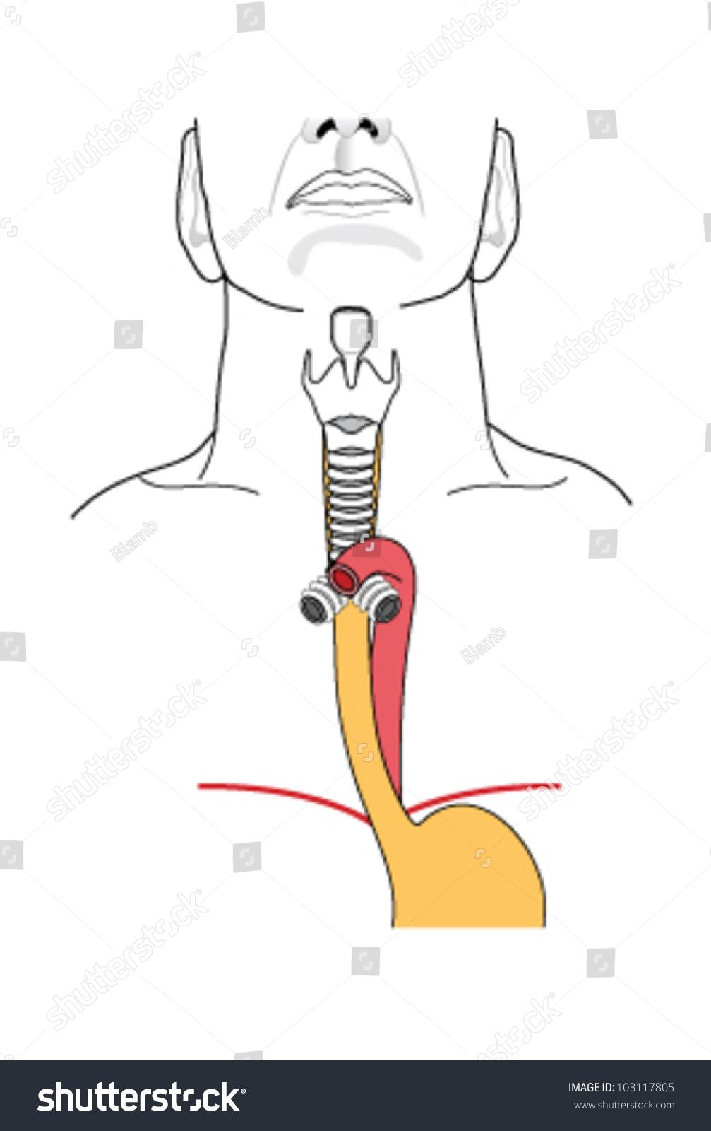 Larynx Trachea Stock Vektorgrafik Lizenzfrei 103117805 Shutterstock