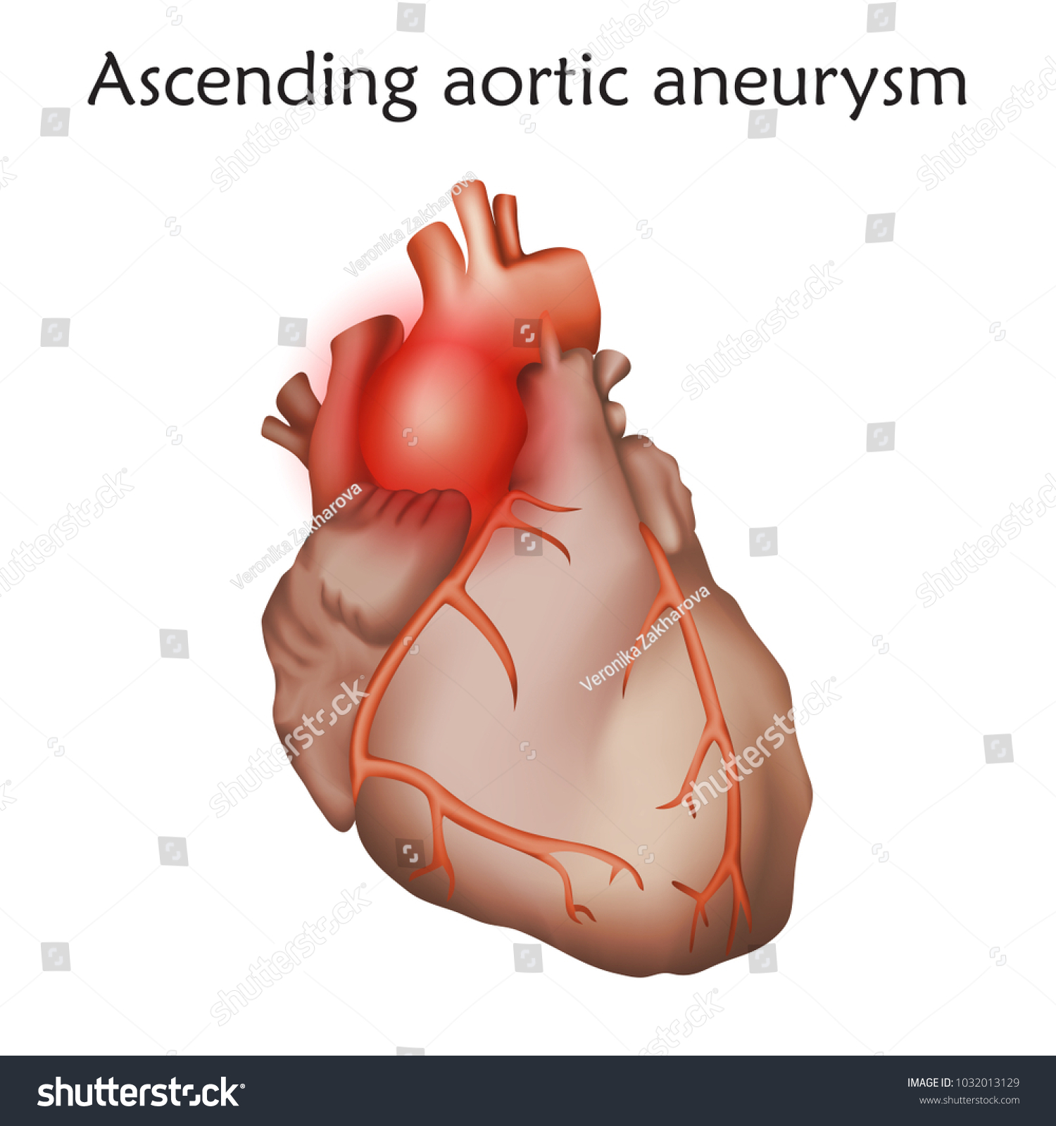 Ascending Aortic Aneurysm Damaged Heart Muscle Stock Vector