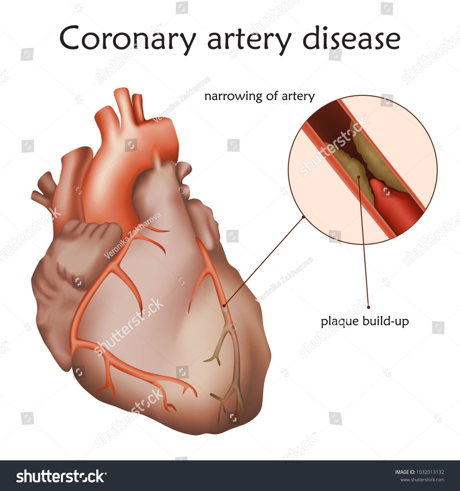 Coronary Artery Disease Blocked Artery Damaged Stock Photo (Photo ...