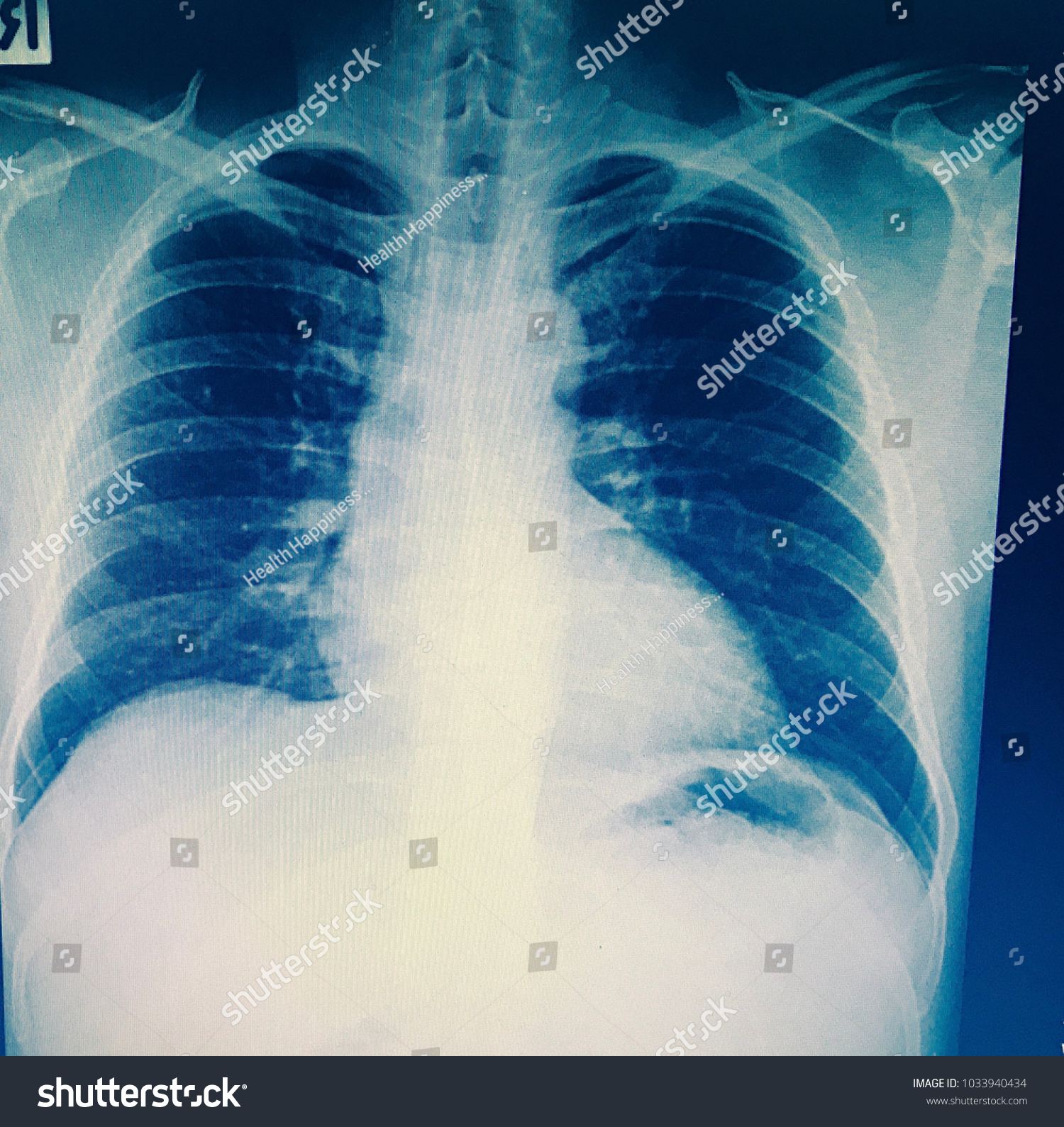 Pulmonary Tuberculosis Tb Chest Xray Show Stock Photo Edit Now