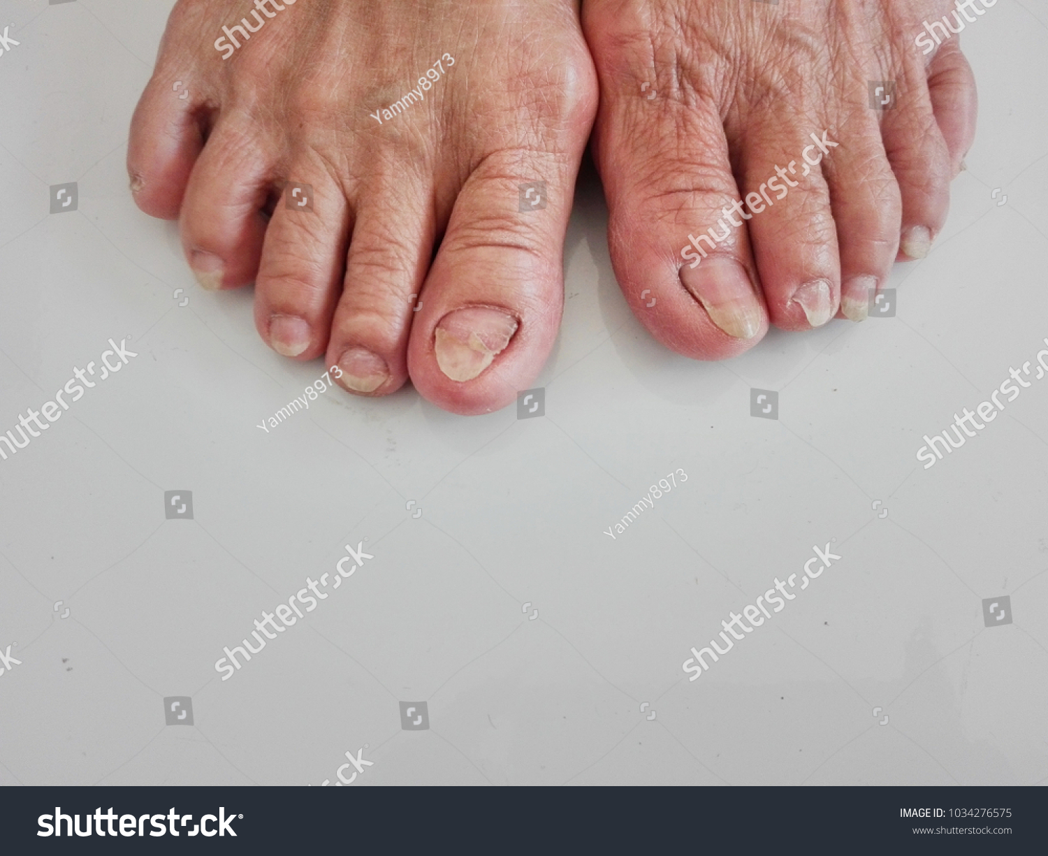 Skin Wrinkles Wrinkles By Age Dirty Nails Stock Photo (Royalty Free ...