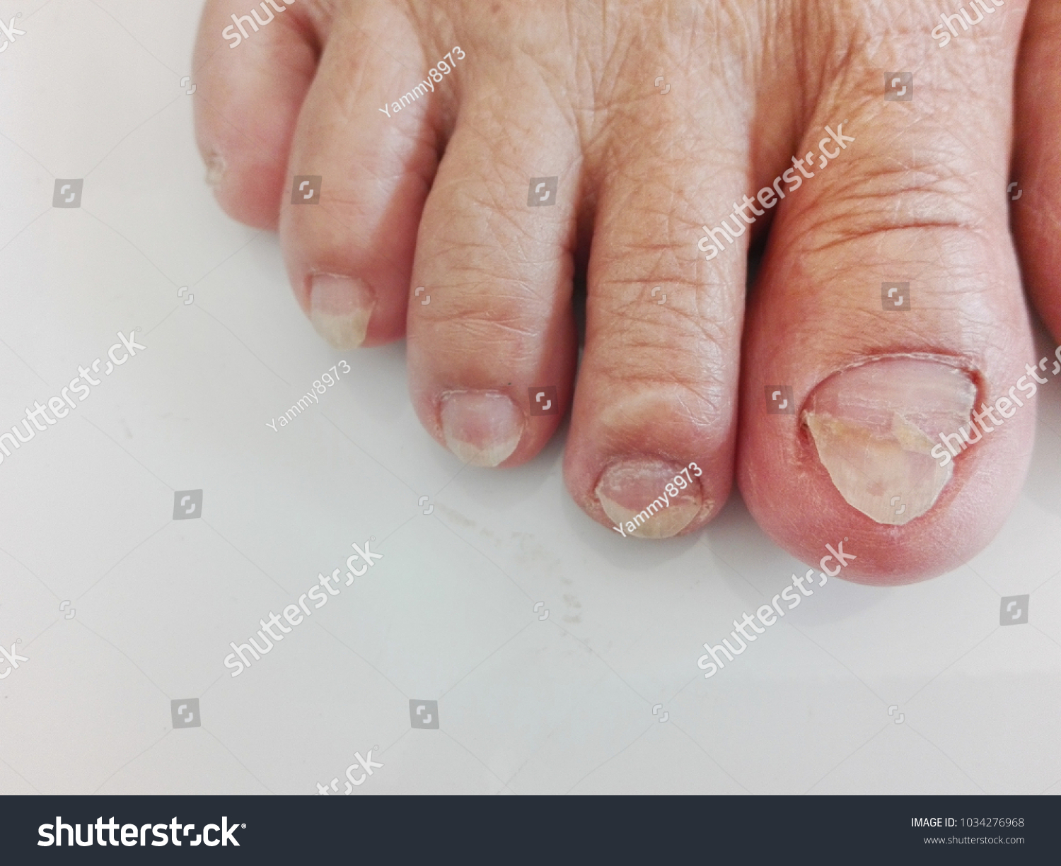 Skin Wrinkles Wrinkles By Age Dirty Nails Stock Photo (Edit Now ...