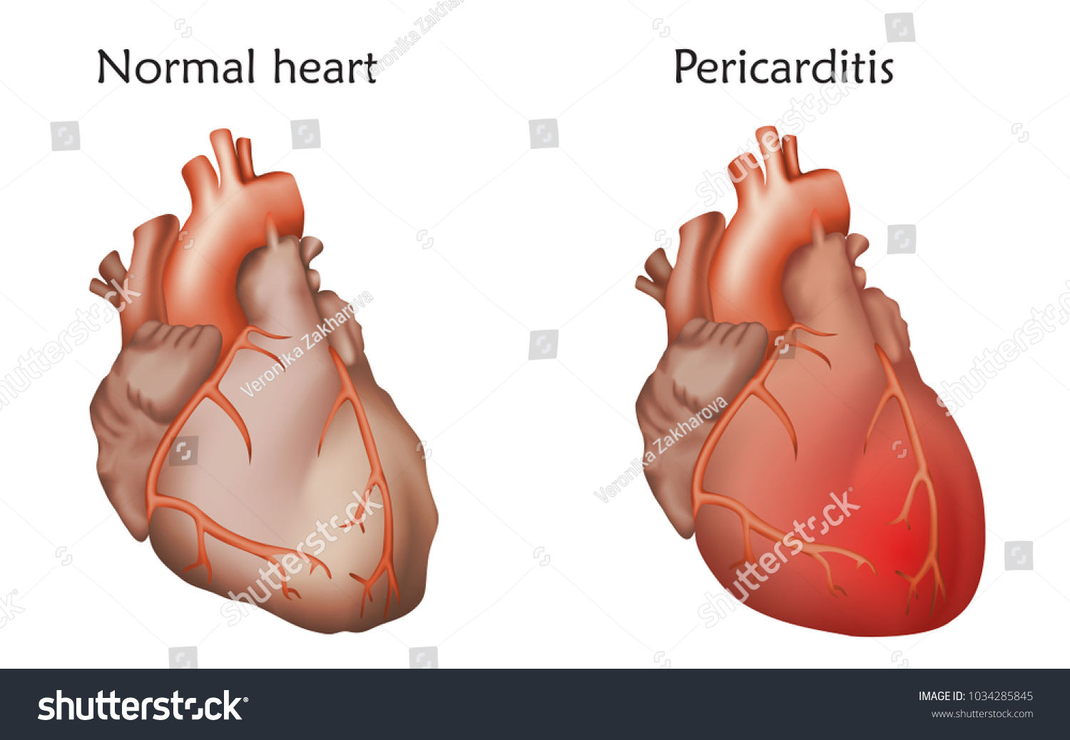 Pericarditis Inflammation Pericardium Damaged Normal Heart Stock ...