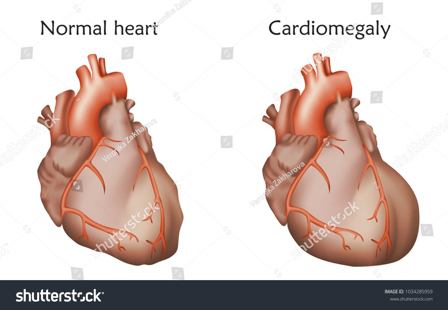 Cardiomegaly Enlarged Normal Heart Muscles Anatomy Stock Vector ...