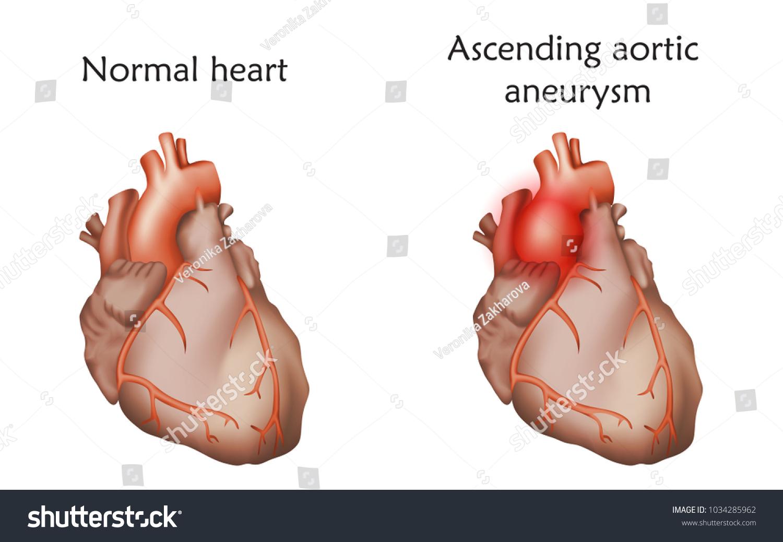 Ascending Aortic Aneurysm Damaged Normal Heart Stock Vector Hd