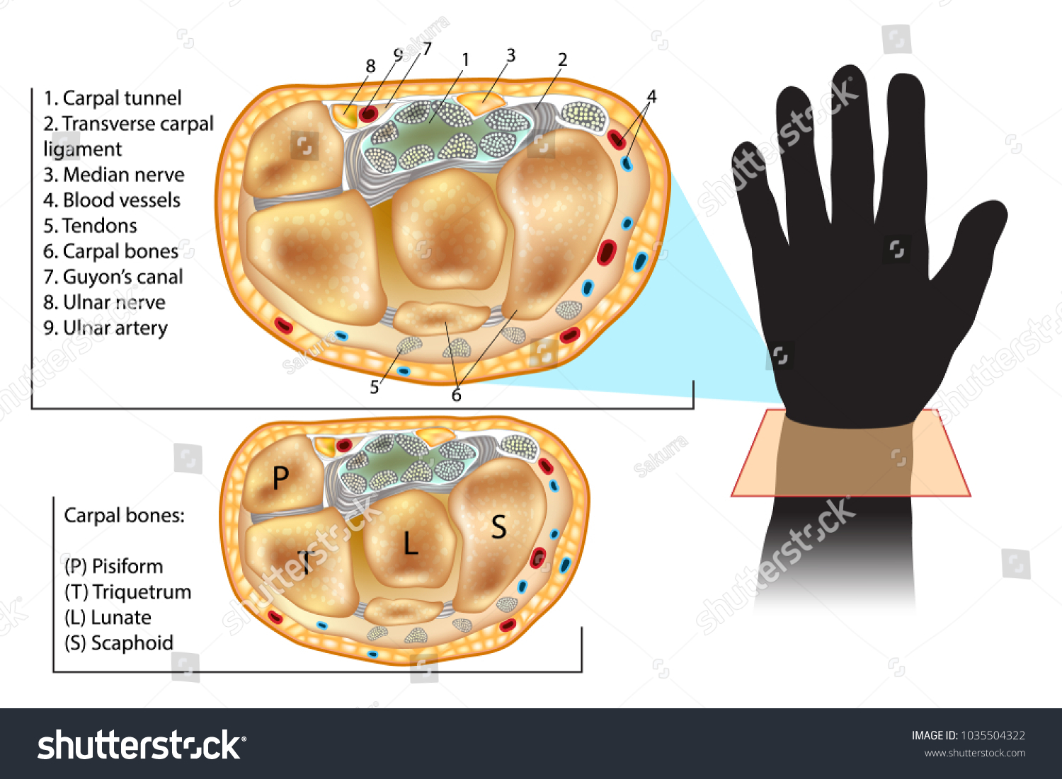 Wrist Cross Section Showing Carpal Tunnel Stock Vector 1035504322 ...