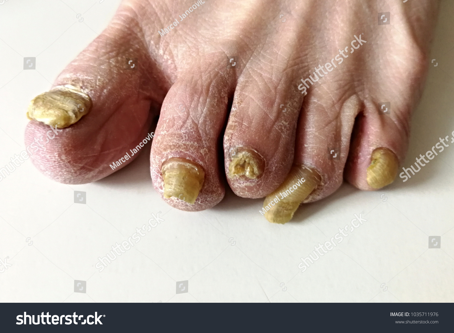 Onychomycosis Fungal Infection Nail Most Common Stock Photo (Royalty ...
