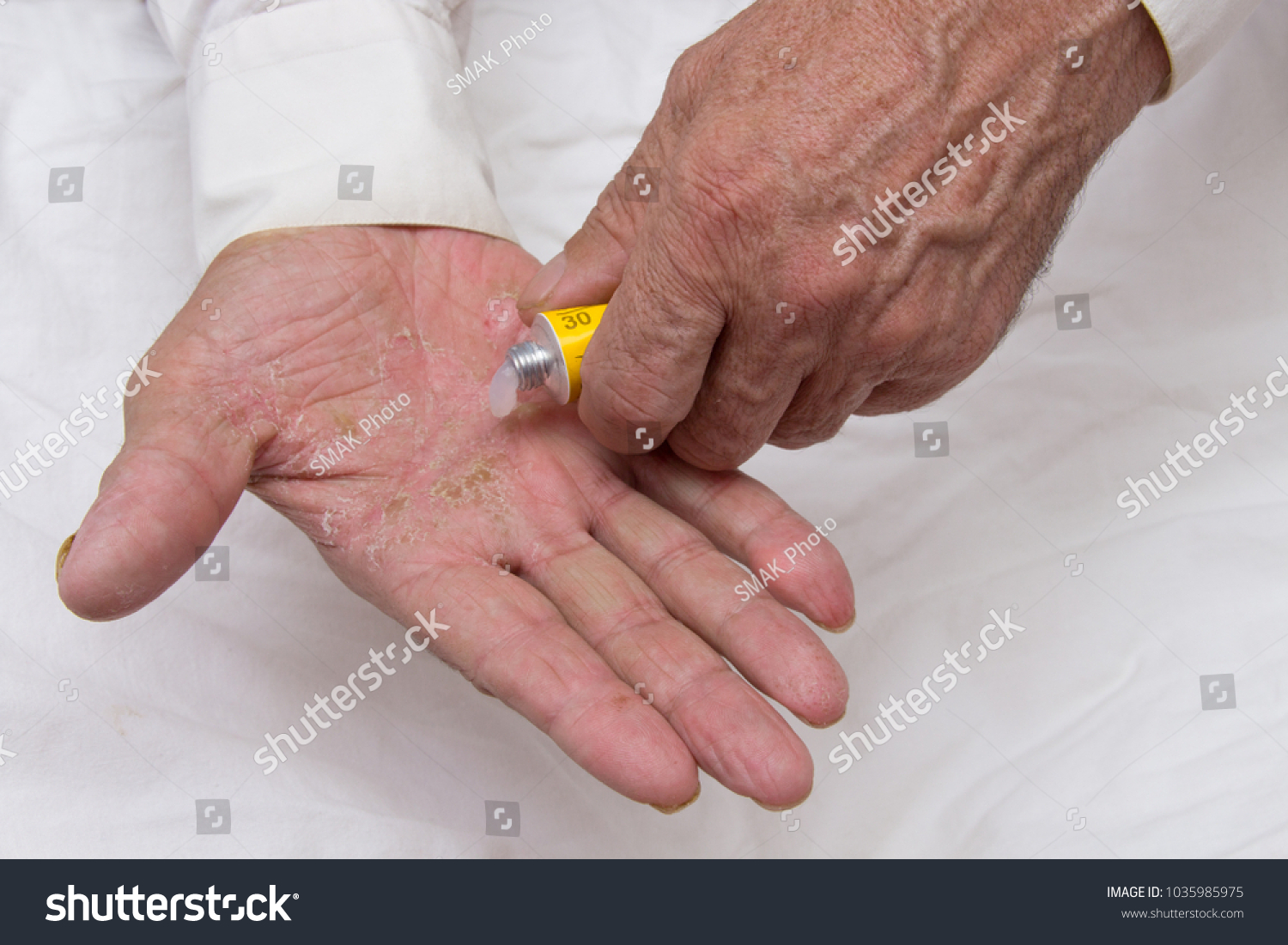 Ointment On Hands Elderly Person Applying Stock Photo (Royalty Free ...