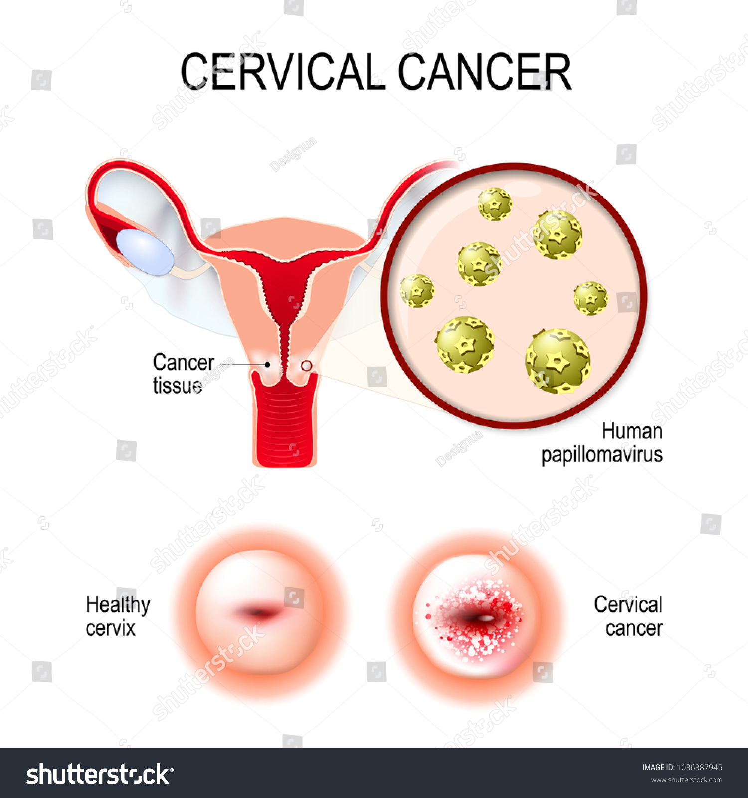 Cervical Cancer Vector Illustration Uterus Cervix Stock Vector Royalty Free 1036387945