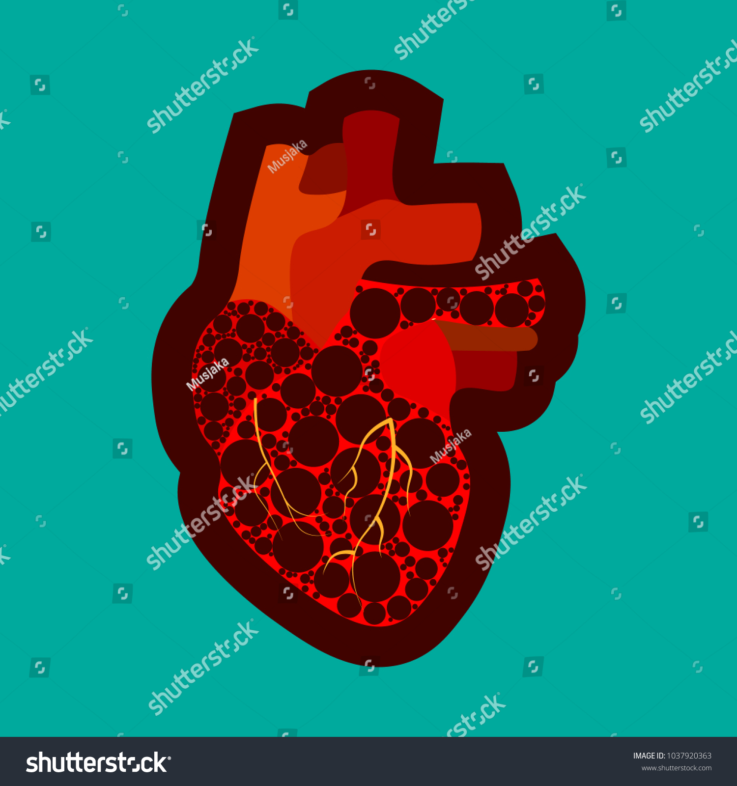 Congenital Heart Disease Awareness Poster Sad Stock Vector Royalty