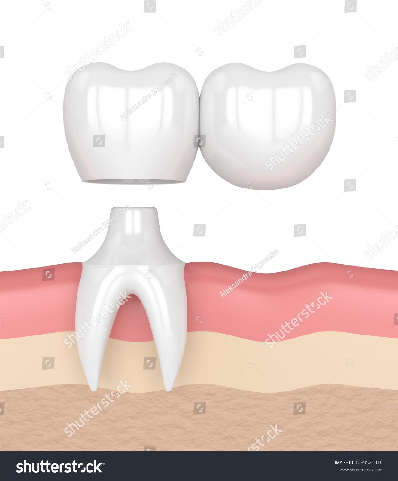 3d Render Of Dental Bridge With Crowns In Gums Ez Canvas Cantilever Diagram Related Keywords