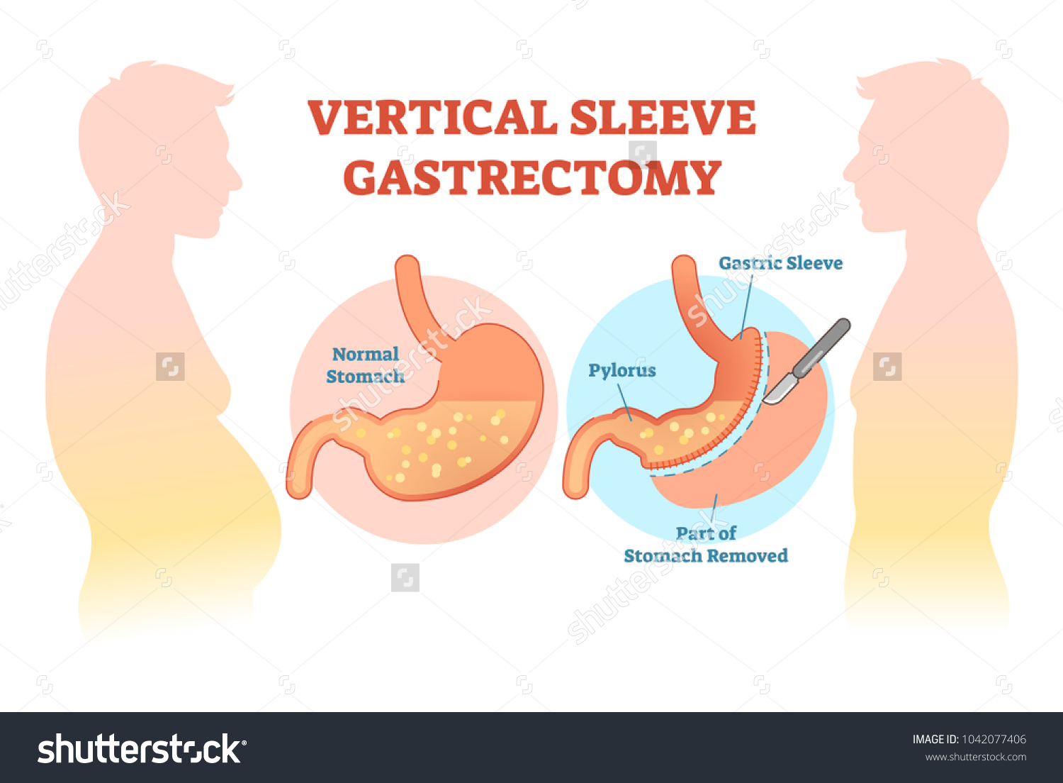 Vertical sleeve gastrectomy medical vector illustration stock vector vertical sleeve gastrectomy medical vector illustration diagram with stomach surgical cut anatomical diagram ccuart Gallery