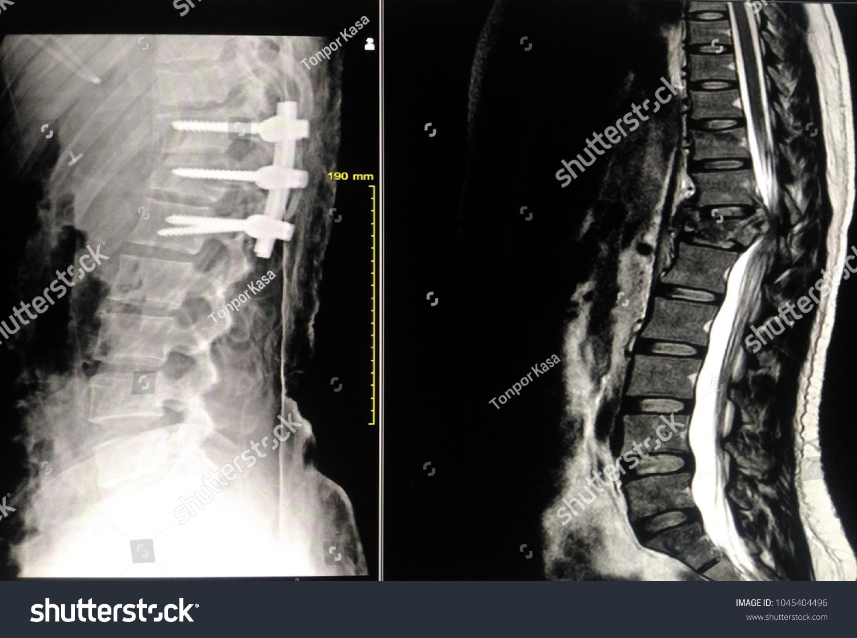 Soft Blurry Image Xray Thoracic Lumbar Spine Stock Photo Edit Now