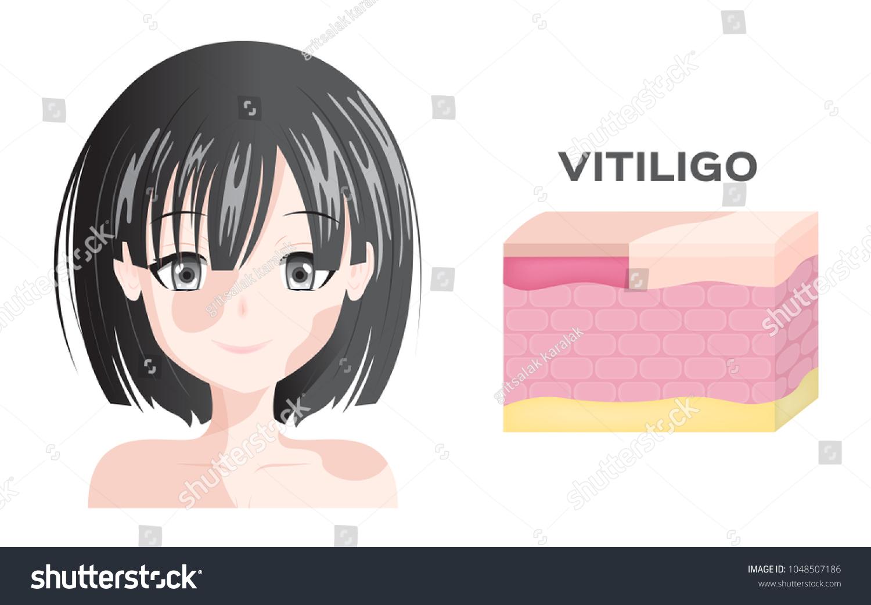 Vitiligo Women Face Skin Layer Anatomy Stock Vector 1048507186 ...