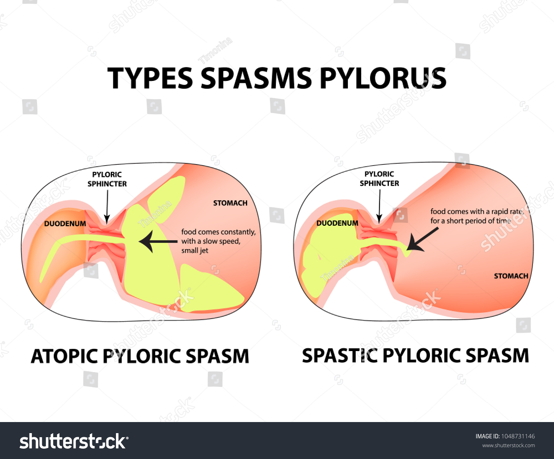 Types Spasms Pylorus Pylorospasm Spastic Atonic Stock Vector (2018 ...